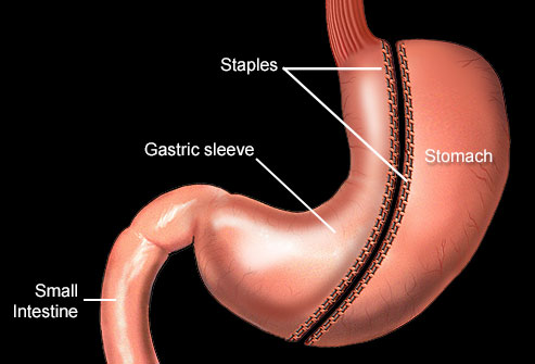 nucleus_rm_illustration_of_gastric_sleeve